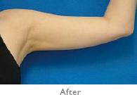 二の腕:施術後