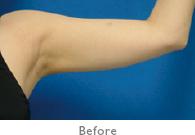 二の腕:施術前